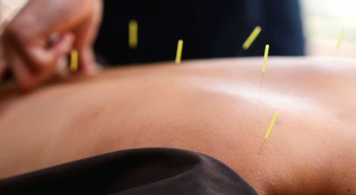 acupuntura sp